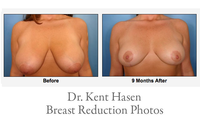 Breast Reduction Photos