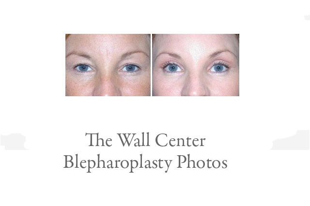 Blepharoplasty Photos