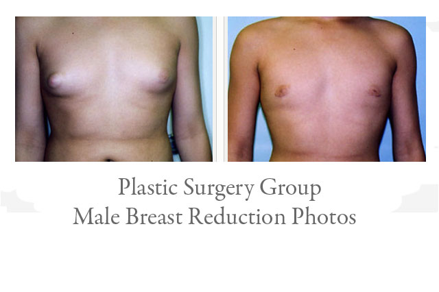 Male Breast Reduction Photos